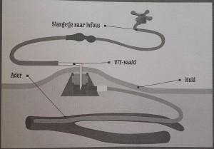 schematische weergave PAC